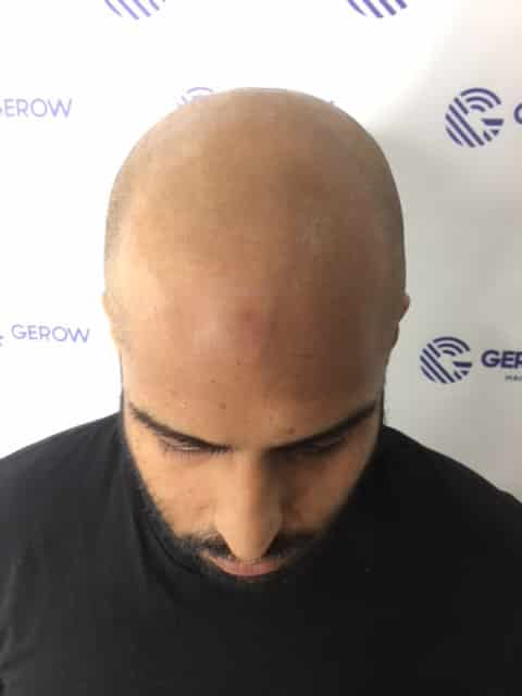 Jonathan Gerow Micropigmentation Model