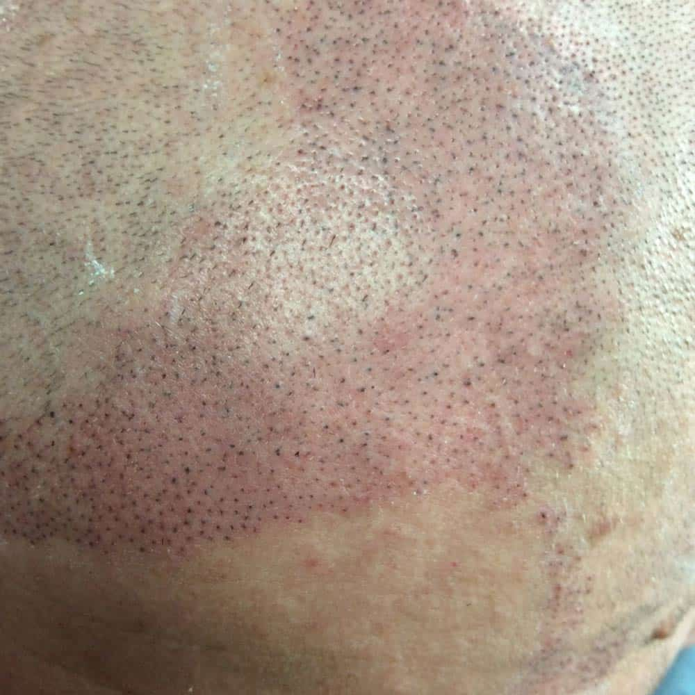 scottsdale scalp micro pigmentation