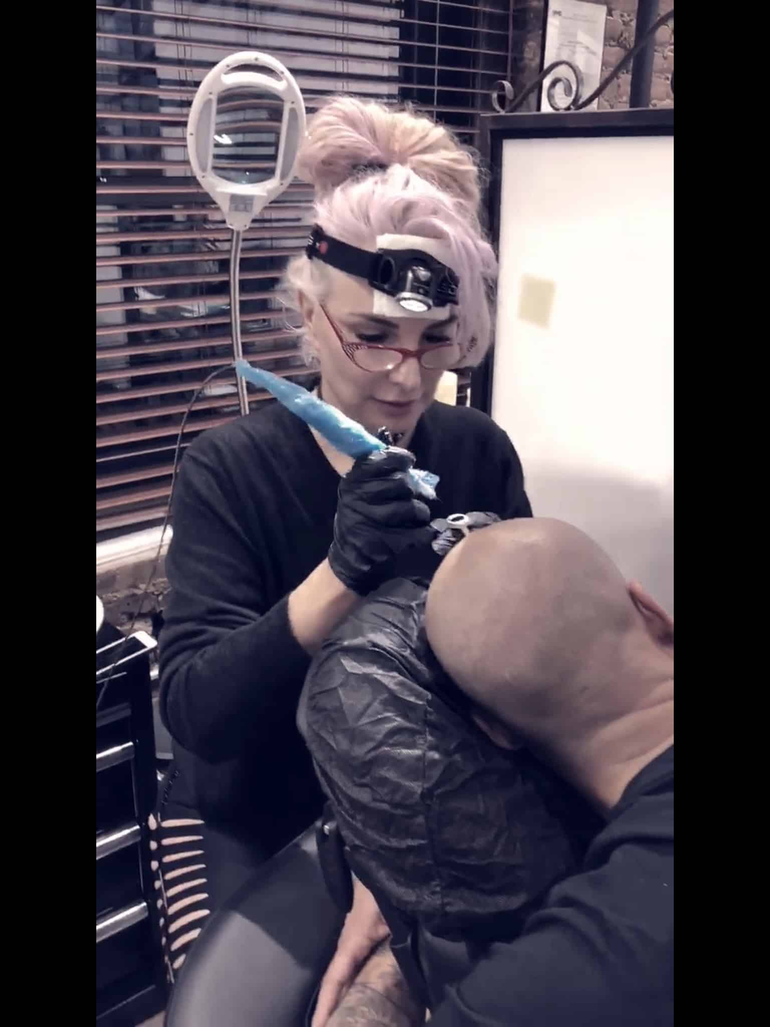 Scalp Micropigmentation with Sherene