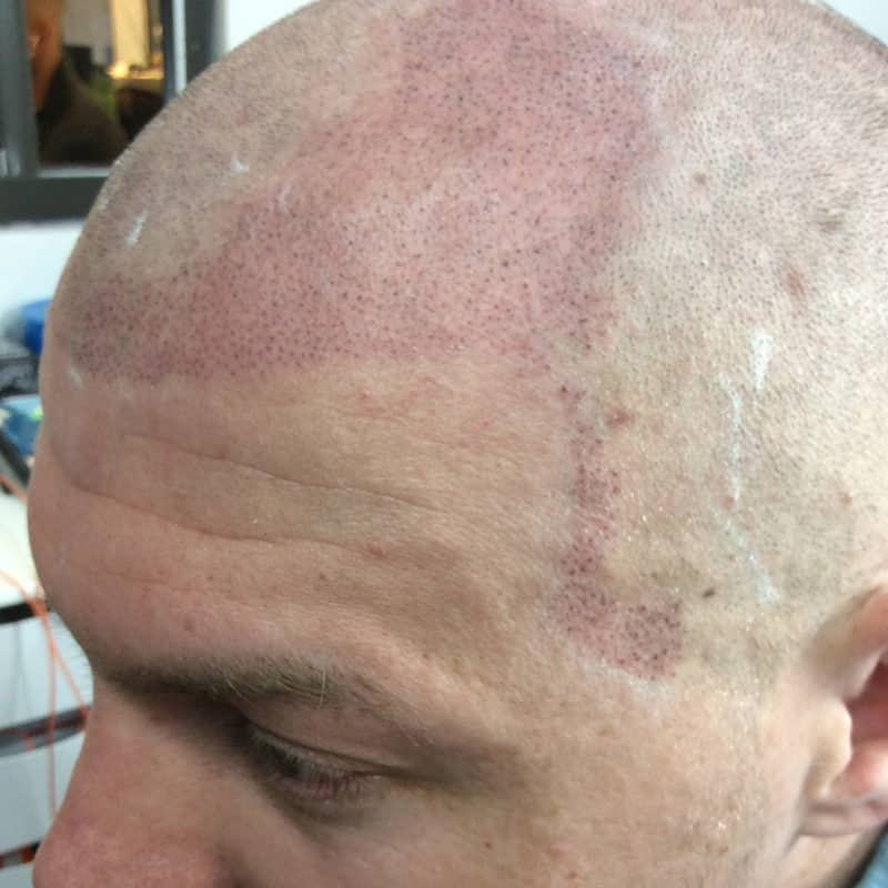 scottsdale scalp micropigmentation